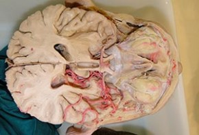 cerebro-embalsamamiento
